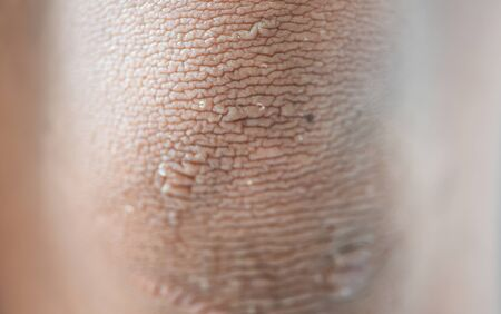 Skin wrinkles around the knees