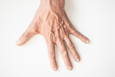 The bulging blood of the elderly man's hands on a white background