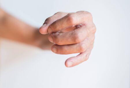 Finger gestures with jerk symptoms