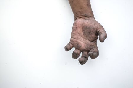The dirty man's hand shows a meaningful gesture.