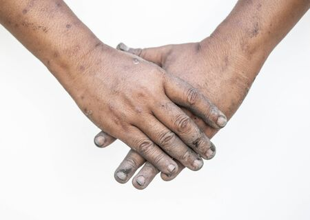 Both dirty hands showed a meaningful gesture.