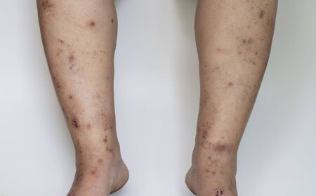 Scars from inflammation, infection on the skin of the legs.