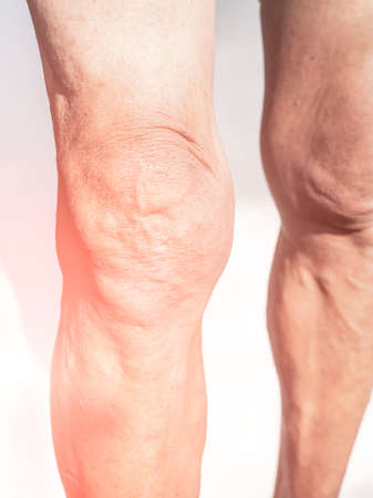 Poor knee joints of the elderly with muscular inflammation and osteoarthritis. Imagens