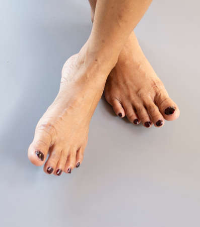 A woman's feet and toes on a blank gray background