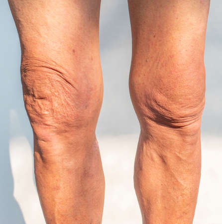 Legs and knees picture of an elderly person with health problems