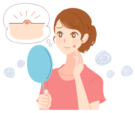 A young woman is suffering from facial pimples Illustration