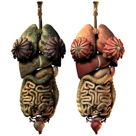 organos internos: Representaci�n 3D enfermos y sanos �rganos internos de la mujer