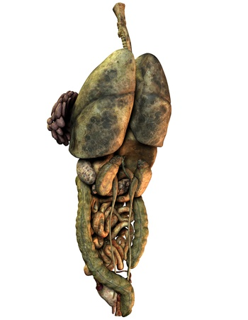 viscera: 3D Rendering with cancer viscera of a female body