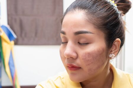 Asian woman And the trace on the surface After being admitted Skin rejuvenation With laser therapy 写真素材