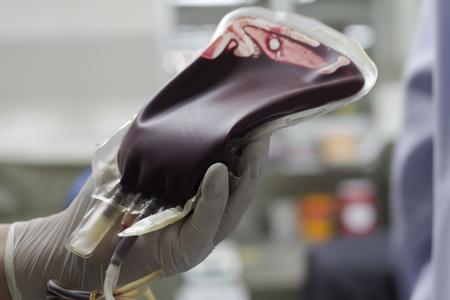 患者の血液バッグ内の血液 写真素材