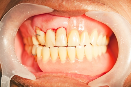 periodontics: Dental prosthesis for upper denture in mouth
