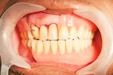 dentures: Dental prosthesis for upper denture in mouth