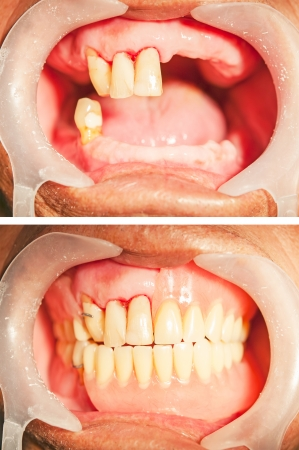 Dental rehabilitation with upper and lower prosthesis, before and after treatment Stockfoto