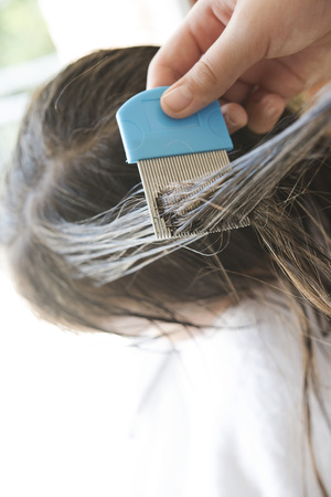 a girl is doing nits and head lice combing, closed up