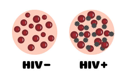 HIV in the blood. blood with and without HIV. blood of a person infected with HIV. blood under a microscope. World aids day. vector illustration