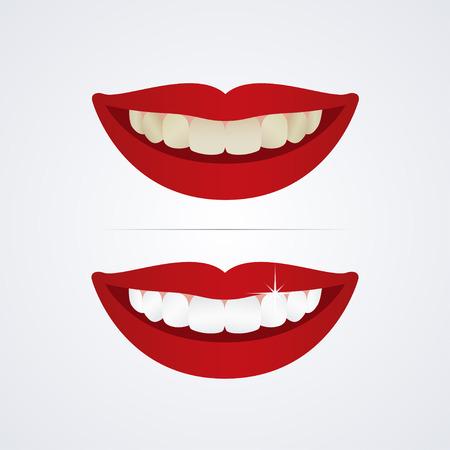 diente: Blanqueamiento ilustraci�n dientes aislados sobre fondo blanco Vectores