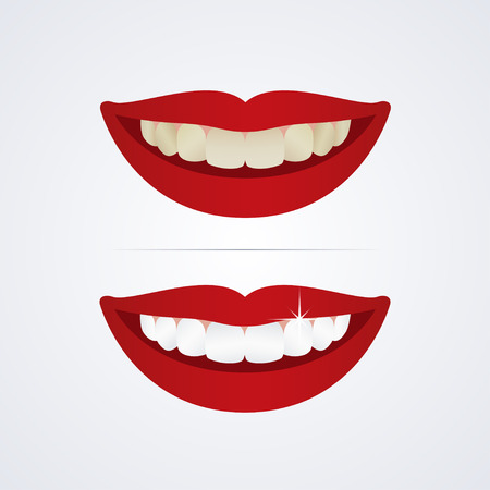 yellow teeth: Whitening teeth illustration isolated on white background Illustration