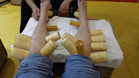 chinese massage therapy with wooden cups