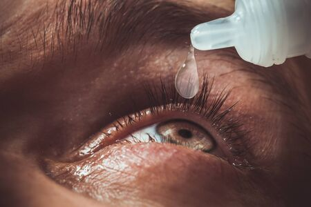 a man drips open human eye with bright red arteries drops to improve vision close up. irritation and redness of the eyeball. pupils, iris, eyelashes in macro. vision problems.