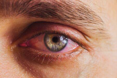 Öffnen Sie das menschliche Auge mit leuchtend roten Arterien aus der Nähe. Reizung und Rötung des Augapfels. Pupillen, Iris, Wimpern im Makro. Sichtprobleme. Standard-Bild