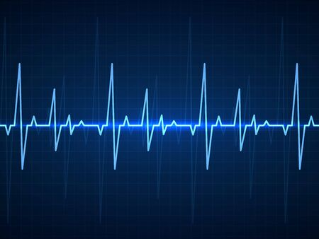 Ekg. Blue sinusoidal pulse lines, monitor with heartbeat signal. Cardiogram pulsing, resuscitation hospital equipment healthcare vector technology background