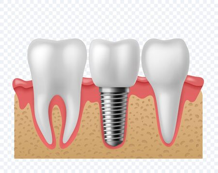 Tooth implant. Human teeth and dental implant, denture orthodontic technology. Artificial teeth dentistry implantation jaw. stomatology vector concept isolated o Vettoriali