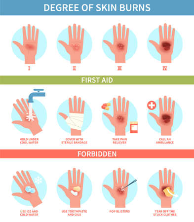 Burns degree. Thermal wound first aid, red skin scalds and blisters emergency help. Treatment instruction thermic injury medical guide, information poster help steps for clinic flat vector infographic