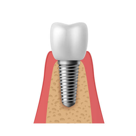 Realistic tooth implant. 3D denture orthodontic implantation teeth, implant structure pictorial models crown. Prosthetics in stomatology clinic concept vector isolated on white background illustration