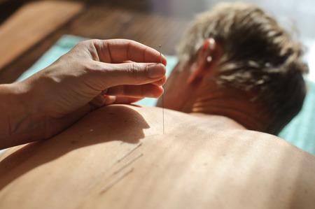Le th�rapeute introduit l'aiguille � l'endroit voulu sur le patient
