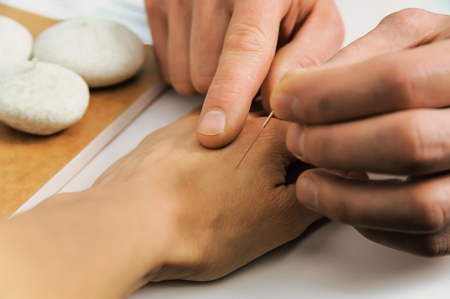 introduces: Acupuncture.Chinese medicine treatmen. The therapist introduces needle in the right place on the hand. Stock Photo