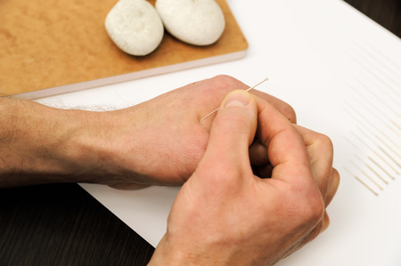 Acupuncture.Chinese medicine treatmen. The therapist introduces needle in the right place on the hand. Stock Photo