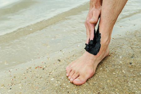 Man applies black therapeutic mud on the ankle.