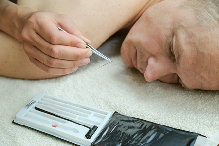 Ear acupuncture treatment. A womans hand holds an acupuncture needle with a tweezers.
