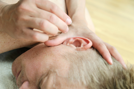 Ear acupuncture treatment. Womens hands are applying needles to acupuncture points on the husbands ear.