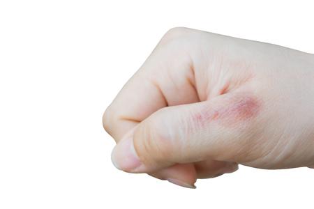 scald: scald on skin of hand isolated on whited background