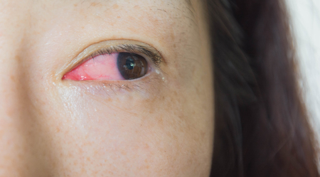 The human eye with symptoms of conjunctivitis