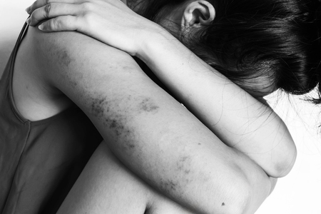 violencia sexual: a woman sitting on ground with arm around lower head, bruises on body, Sexual violence , sexual abuse, human trafficking  in white tone