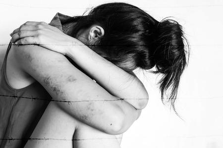 violencia sexual: una mujer sentada en el suelo con la cabeza brazo por menor, contusiones en el cuerpo, la violencia sexual, abuso sexual, trata de personas en el tono blanco
