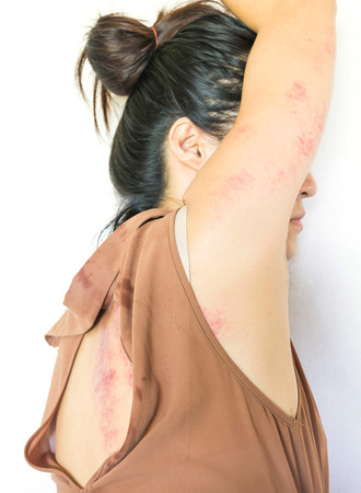 violencia sexual: a woman laying  on ground with arm around lower head, bruises on body, Sexual violence , sexual abuse, human trafficking Foto de archivo