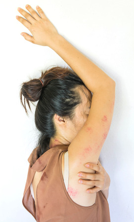 a woman laying  on ground with arm around lower head, bruises on body, Sexual violence , sexual abuse, human trafficking Stock Photo