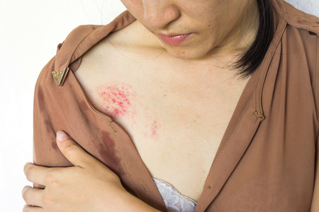 bruises on body, Sexual violence , sexual abuse, human trafficking with shadow edge Stock Photo