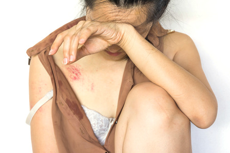 a woman sitting on ground with arm around lower head, bruises on body, Sexual violence , sexual abuse, human trafficking