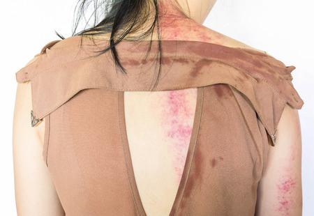 violencia sexual: contusiones en el cuerpo, la violencia sexual, abuso sexual, trata de personas con el borde de la sombra Foto de archivo