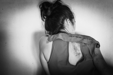 violencia sexual: bruises on body, Sexual violence , sexual abuse, human trafficking with shadow edge in white tone