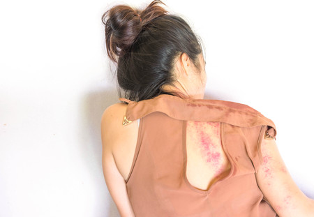 violencia sexual: bruises on body, Sexual violence , sexual abuse, human trafficking Foto de archivo