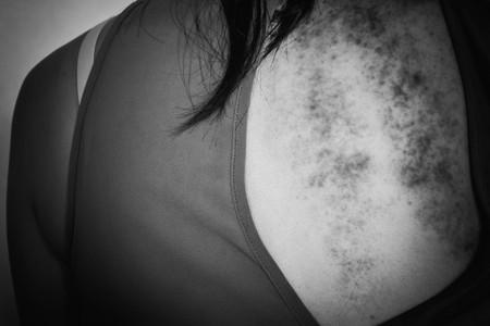 violencia sexual: contusiones en el cuerpo, la violencia sexual, abuso sexual, trata de personas con el borde de la sombra en tono blanco