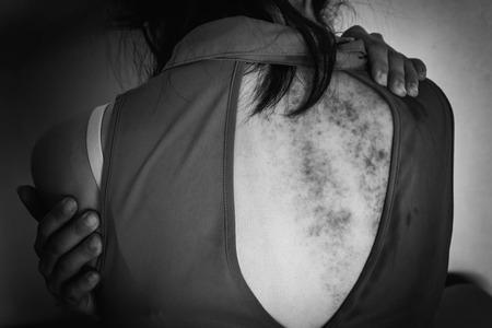 violencia sexual: una mujer sentada en el suelo con el brazo alrededor del cuerpo con la cabeza más baja, contusiones en el cuerpo, la violencia sexual, el abuso sexual, la trata de personas con el borde de la sombra en tono blanco