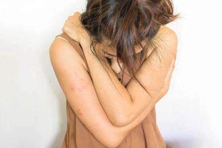violencia sexual: una mujer sentada en el suelo con el brazo alrededor del cuerpo con la cabeza más baja, contusiones en el cuerpo, la violencia sexual, el abuso sexual, la trata de personas en blanco
