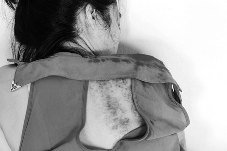 violencia sexual: bruises on body, Sexual violence , sexual abuse, human trafficking with shadow edge  in white tone Foto de archivo