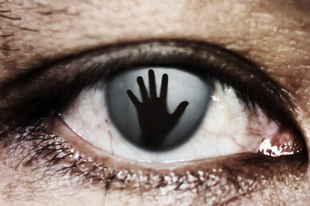 contusion: hand of woman In the twinkling of an eye, human trafficking concept